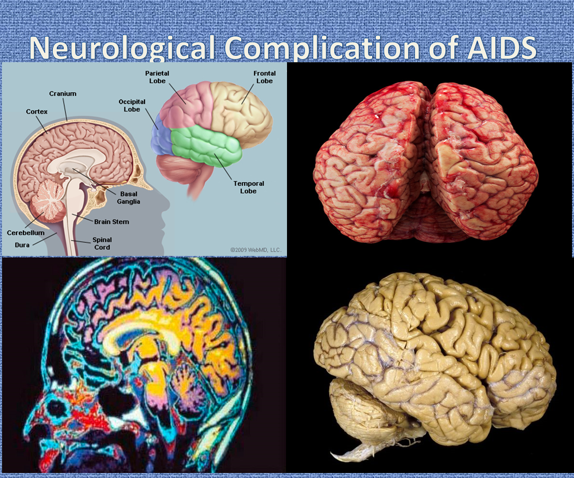 HIV and AIDS have several neurological complications. It ... - ThingLink