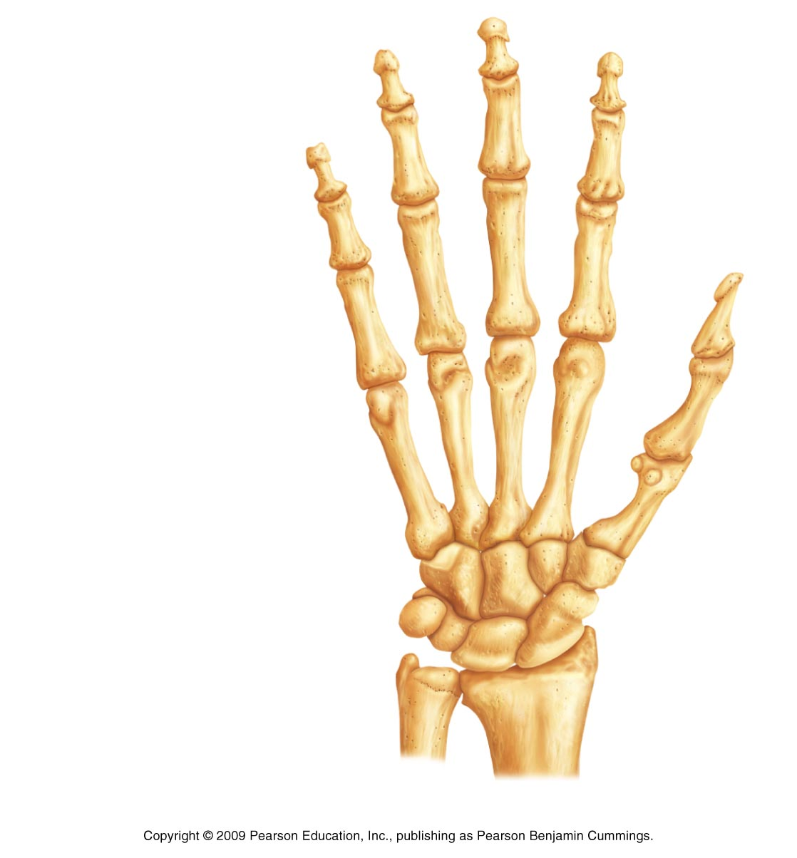 radius , ulna , pisiform , triquetral , lunate , scaphoid