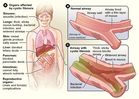 Diseases of the human respiratory system ocr gcse biology thinglink s2ingpic ccuart Image collections