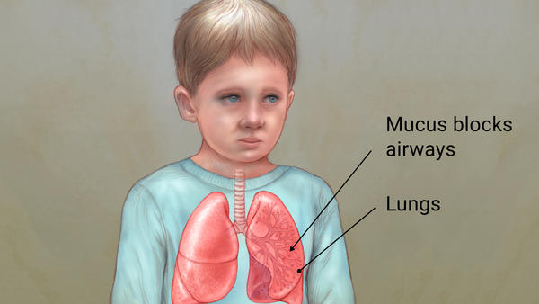 history of cystic fibrosis