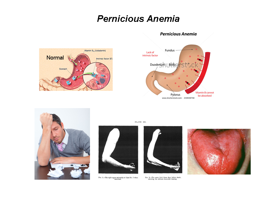 pernicious anemia (pa) is in the family of macrocytic-nor, Skeleton